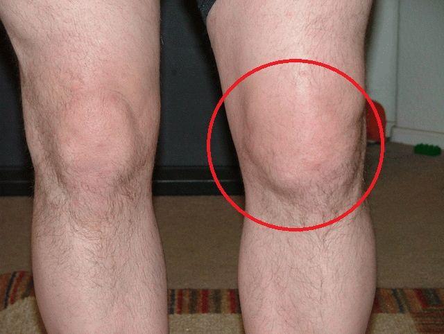 подагра коленных суставов лечение