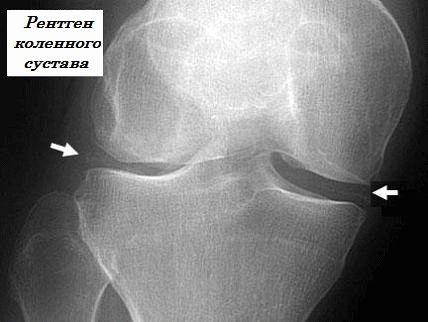 Подагра коленного сустава: методы лечения