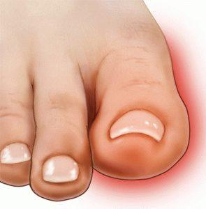 Воспаление сустава пальца