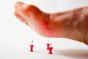 Острая боль при воспалении