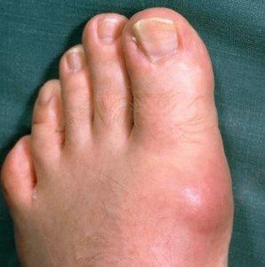 Воспаление сустава ноги