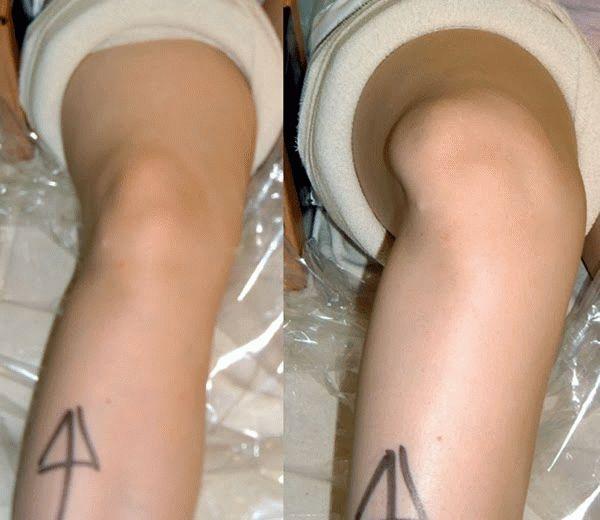 Вывих колена: симптомы и лечение