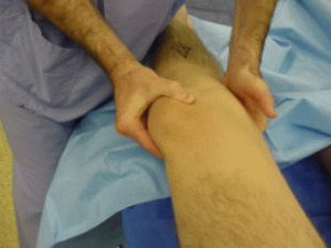 Вправка коленного сустава