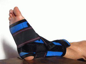 Гипсовая лангета для спокойствия ноги