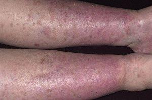 Опухание и изменение цвета ног