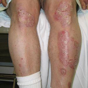 Подвид артрита ног