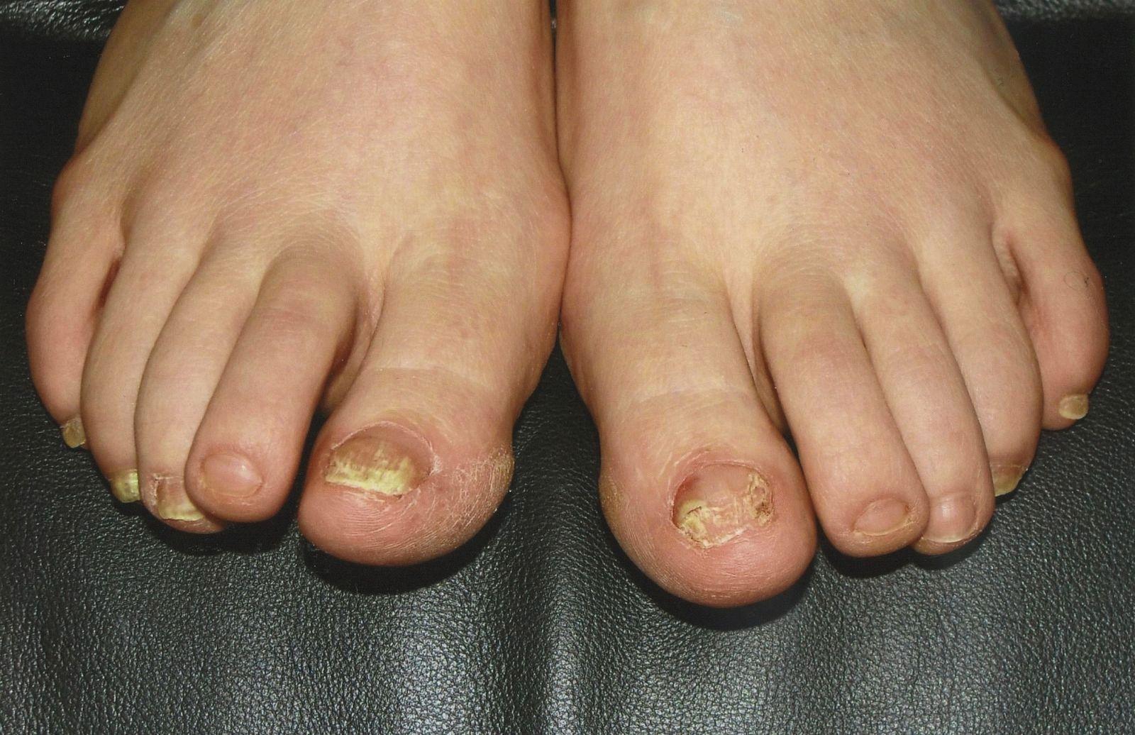 Левомиколь от грибка ногтей