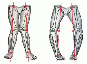Варианты деформации суставов
