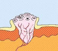 мозоль куриная фото