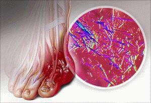 Подагра и кристаллы мочевой кислоты