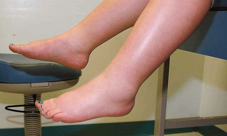 Как в домашних условиях снять отечность ног - TheDaily.Ru