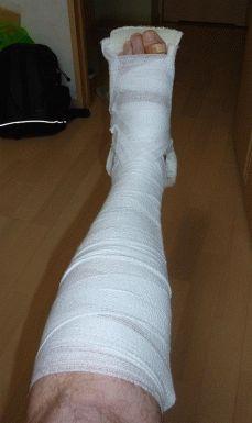 Почему отекает нога в гипсе и методы избавления от проблемы