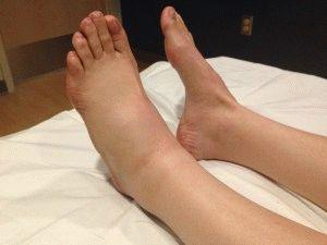 Отекла только левая нога