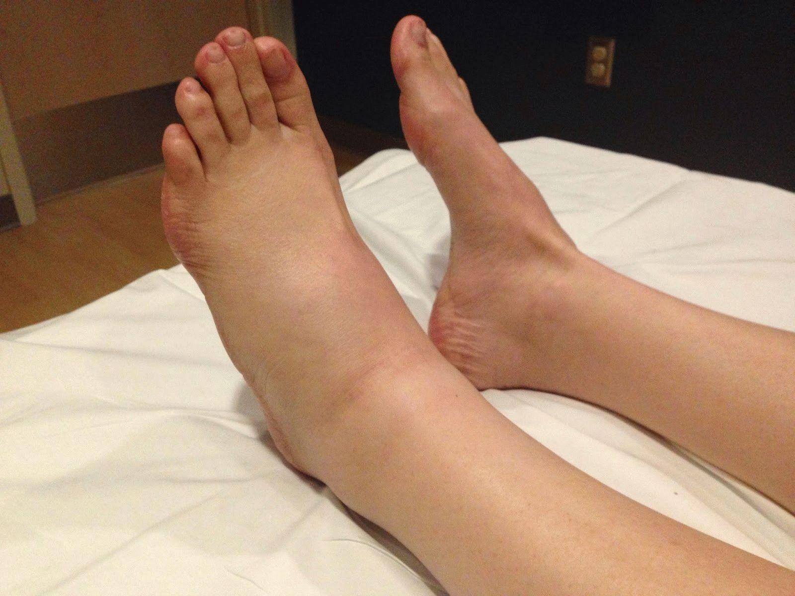 Опух сустав на ноге лечение