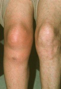 Отекло одно колено