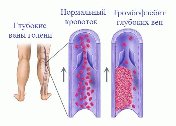 Лечение тромбоза глубоких вен в домашних условиях