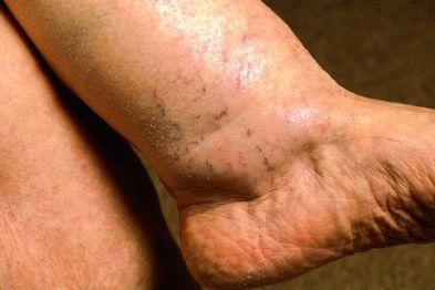 Почему отекают ноги у пожилых женщин как лечить