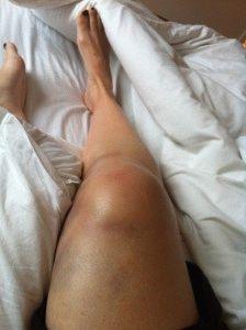 Травмированная нога