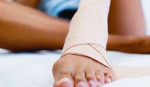 Перевязка больной ноги
