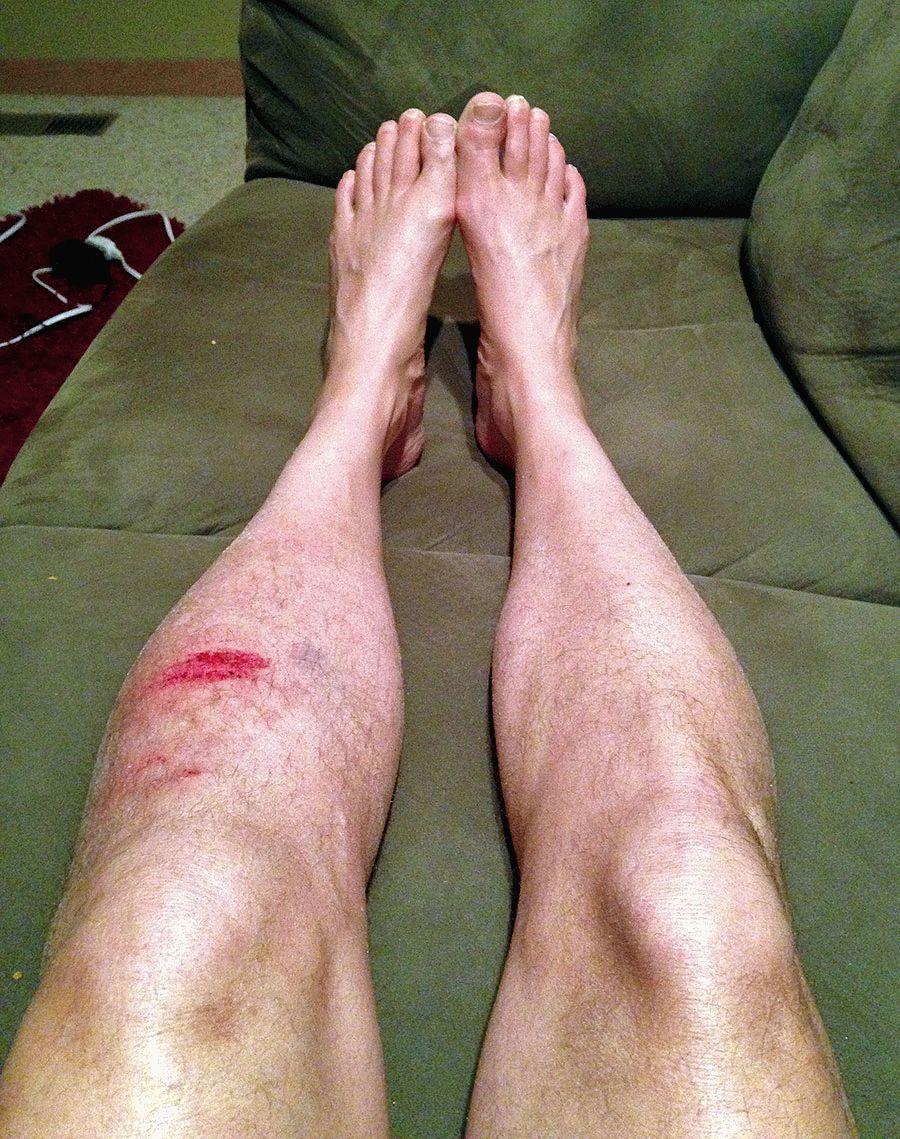 Как снять отёк ноги после травмы: способы, лечение и первая ...
