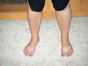 Крупные ноги