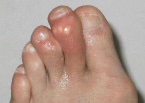 Подагра пальцев ног