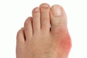 Бурсит на ноге