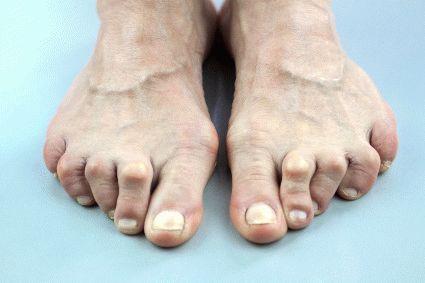 Причины болезненных ощущений в большом пальце стопы
