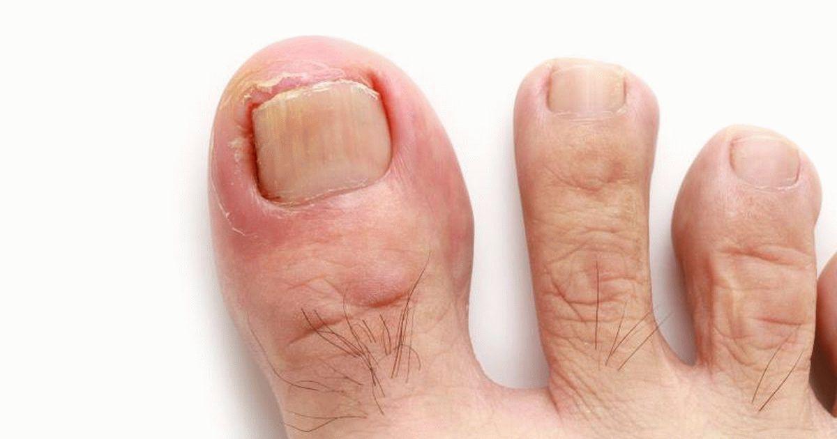 Нагноение вросшего ногтя на ноге