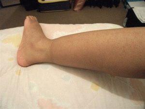 Отёкшая нога