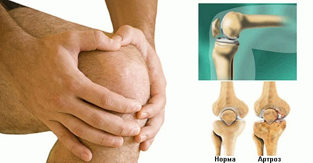 артроз колена упражнение