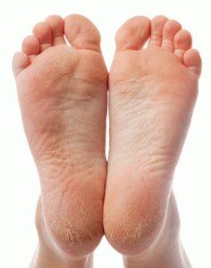 Проблемные ноги
