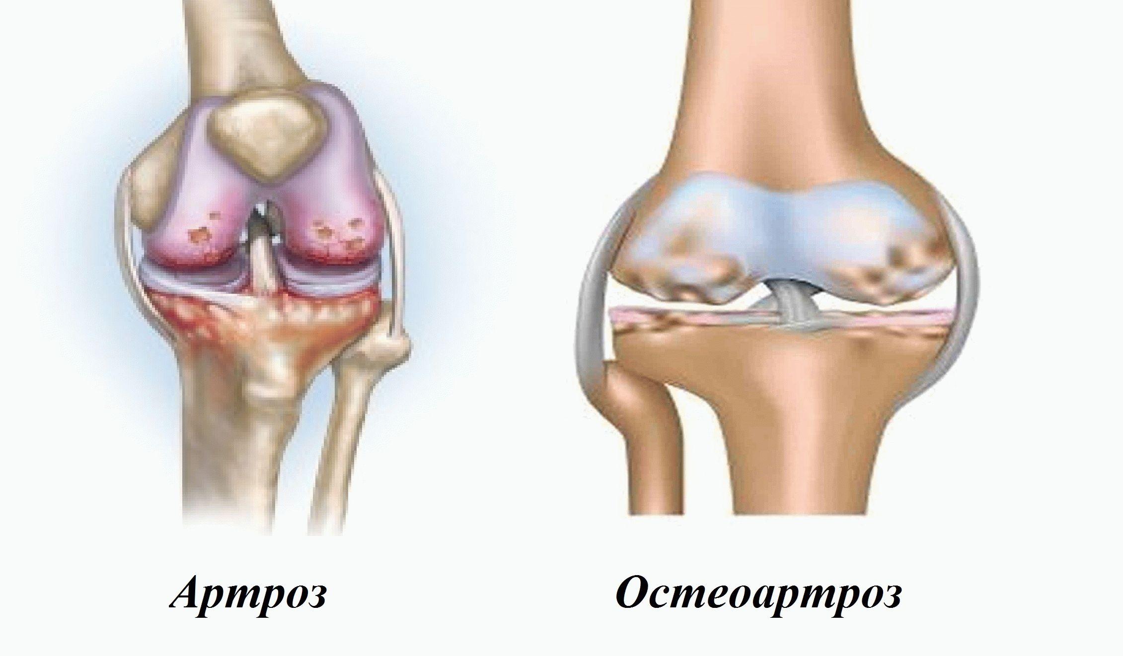 заболевания коленных суставов