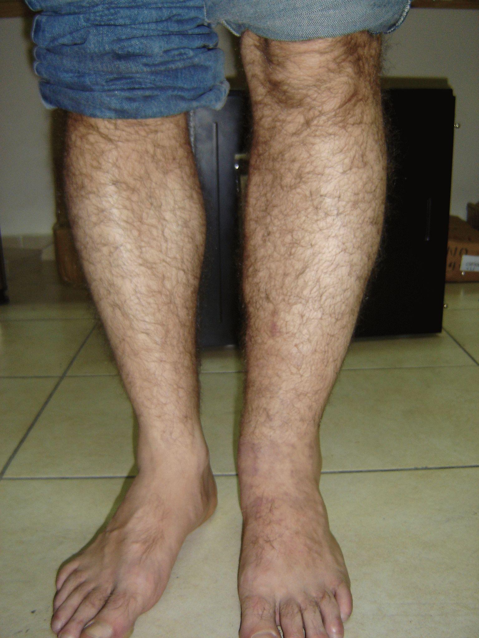 отек голени одной ноги