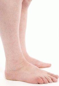 Отекают и болят ноги