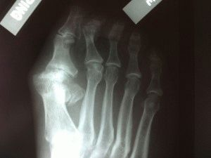 Артроз пальца ноги