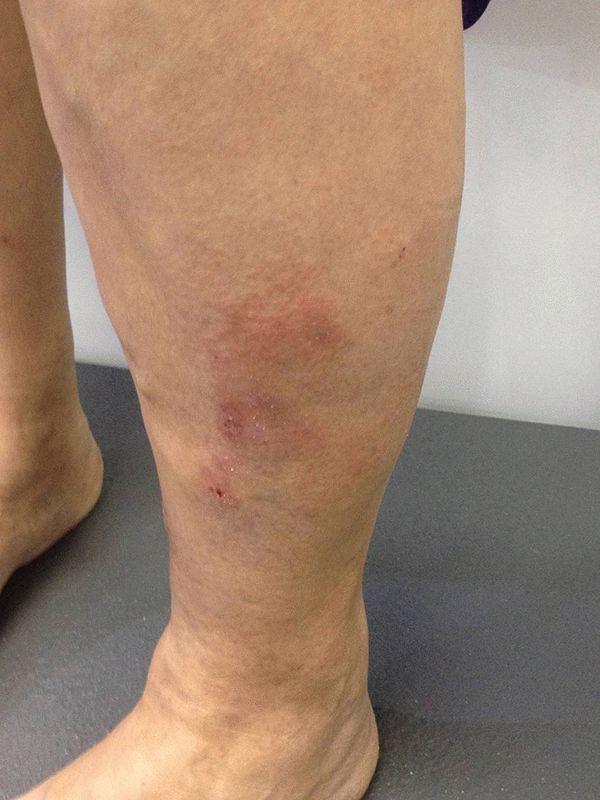 Вены на ногах выступают причины народные способы