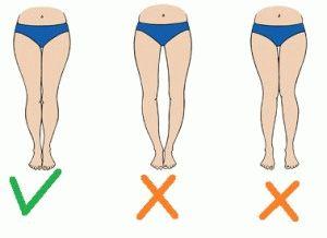 Изменения формы ног