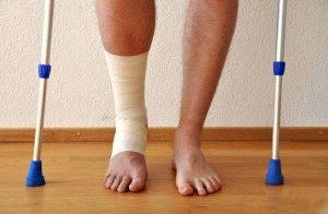Травма голеностопного сустава
