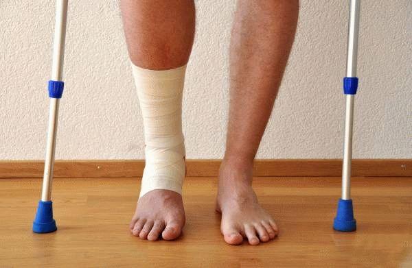 Упражнения при артрозе голеностопного сустава 39