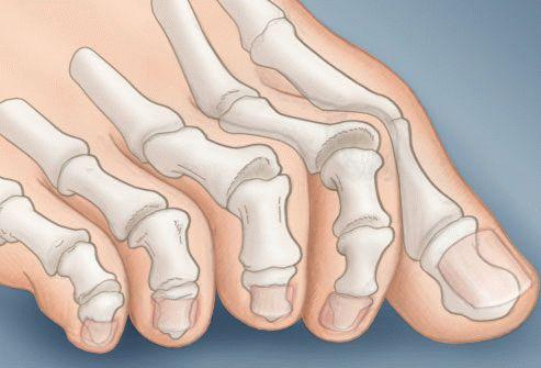 Как лечить молоткообразную деформацию пальцев ног