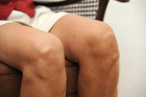 Деформация коленной чашечки