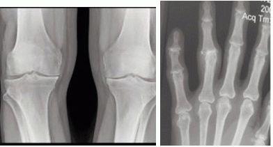 Артроз - Лечение артроза коленного сустава народными средствами и методами