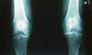 Снимок артроза ног