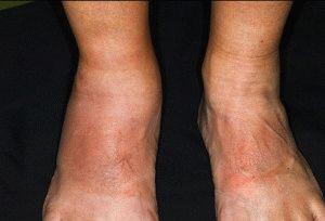 Артроз и псориаз ног