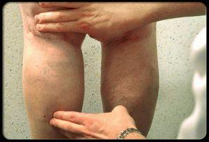 Осмотр проблемных ног
