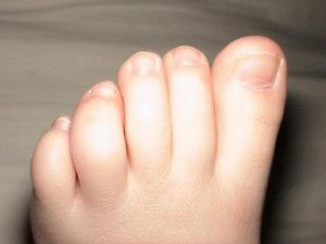Отекают пальцы ног