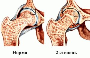 2 степень разрушения сустава