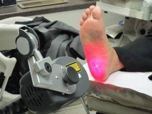 Лечение пятки лазером