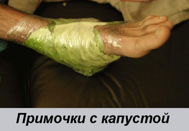 Как сделать компресс с капустным листом